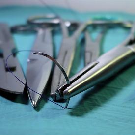 Bőrelváltozások sebészeti eltávolítása