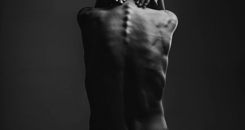 aconite jungar ízületi kezelés fájdalom a vállízületben nyugodt állapotban