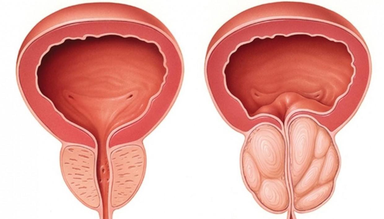 a nemi szemölcsök jelei a férfiaknál humán papilloma vírus kezelése